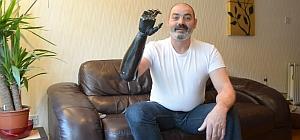 Бионический протез из «Звёздных войн» стал реальностью