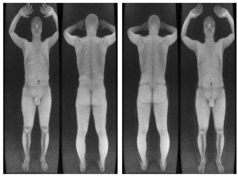 Слева: пистолет калибра 9×17 мм примотан липкой лентой над коленом. Справа: тот же пистолет пришит к штанине. В обоих случаях он не отображается на Т-сканере.(изображение: radsec.org).