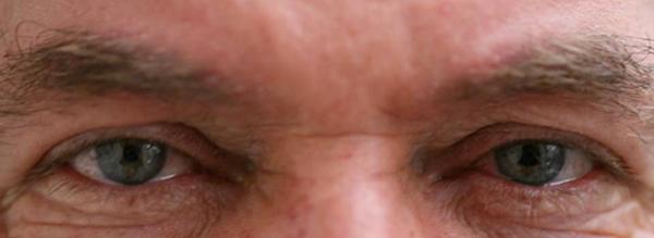 KAMRA Vision: новое слово в исправлении дальнозоркости