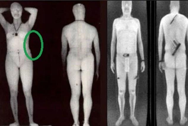 что просвечивает рентген в аэропорту тура: