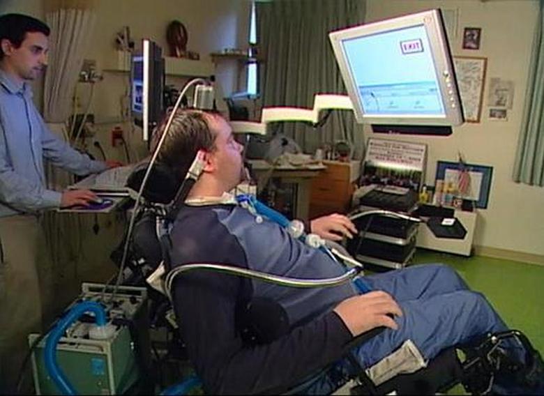 "Мэттью Нейгл и его интерфейс ""мозг-компьютер""."