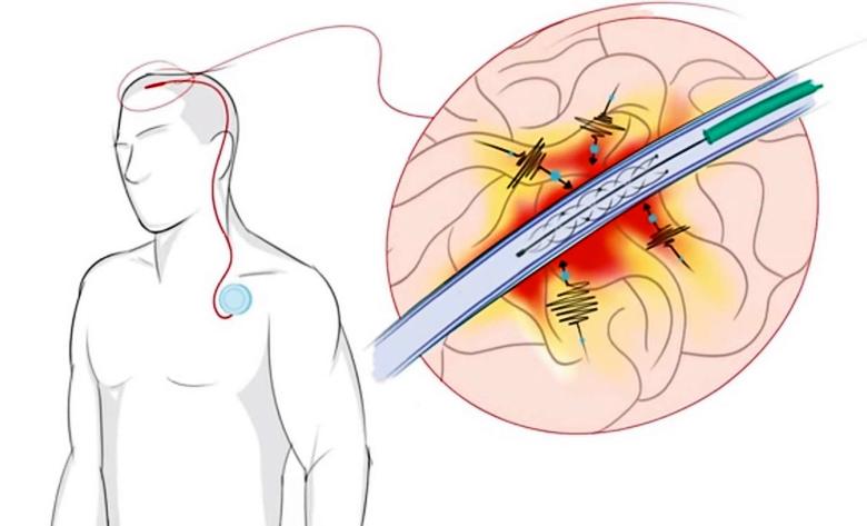 Имплантированный стентрод и носимый микрокомпьютер (эксиз: University of Melbourne).