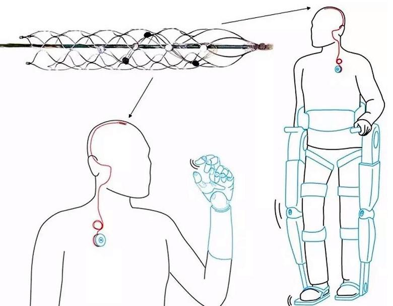 """Схема использования стентрода в интерфейсе """"мозг - компьютер"""" (эксиз: Dr Thomas Oxley)."""