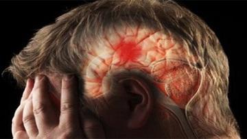 Оренбургские ученые-медики изобрели устройство, которое позволяет определить, грозит ли человеку инсульт