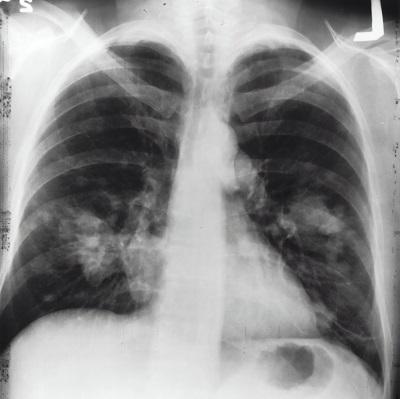 Может ли искусственный интеллект диагностировать коронавирус по рентгеновским снимкам
