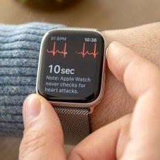 Доктор рассказал, как Apple Watch спасли его жизнь